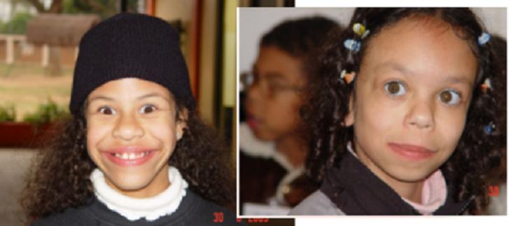 Crianças com síndrome de Williams
